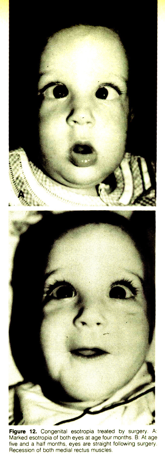 Figure 12. Congenital esotropia treated by surgery. A: Marked esotropia of both eyes at age four months B: At age five and a half months, eyes are straight following surgery. Recession of both medial rectus muscles
