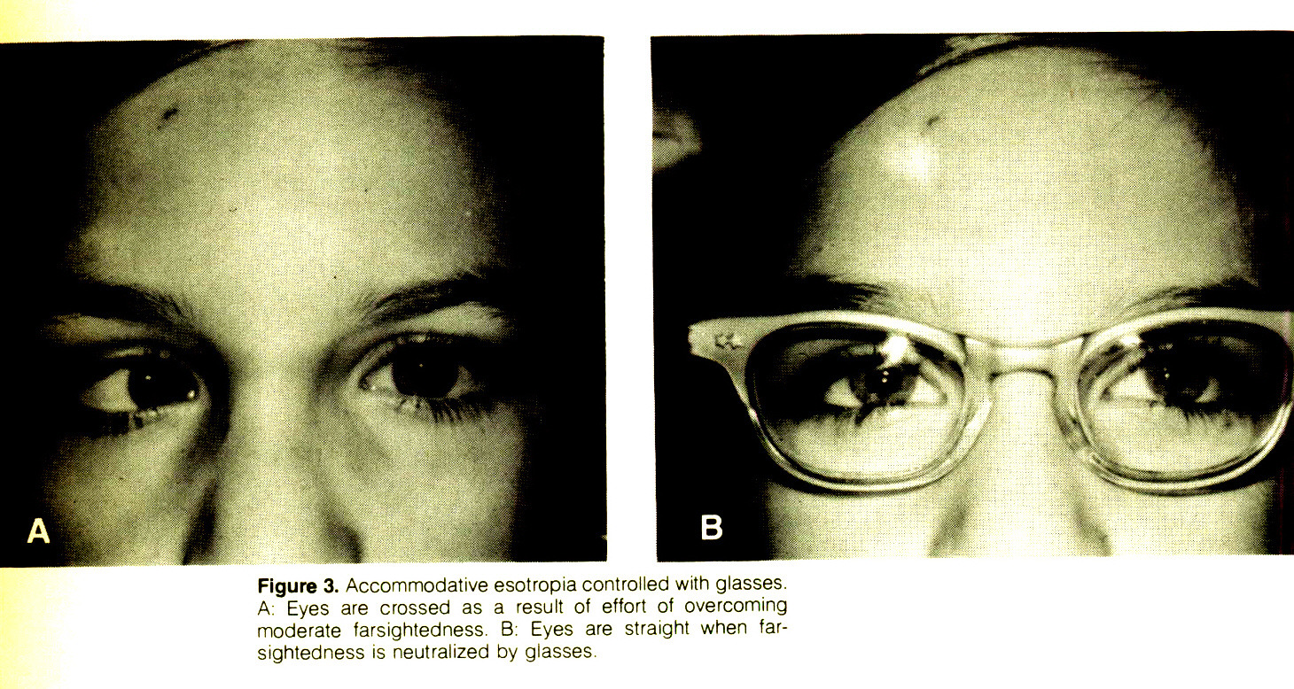 Figure 3. Accommodative esotropia controlled with glasses. A: Eyes are crossed as a result of effort of overcoming moderate farsightedness. B: Eyes are straight when farsightedness is neutralized by glasses.