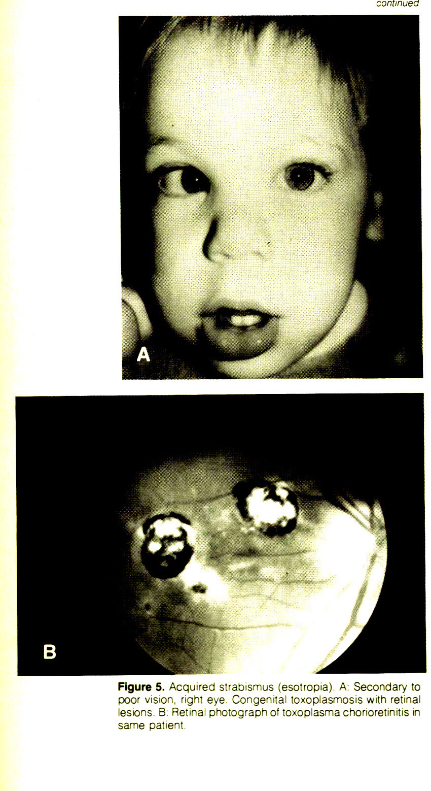 Figure 5. Acquired strabismus (esotropia). A: Secondary to poor vision, right eye. Congenital toxoplasmosis with retinal lesions B: Retinal photograph of toxoplasma chorioretinitis in same patient.