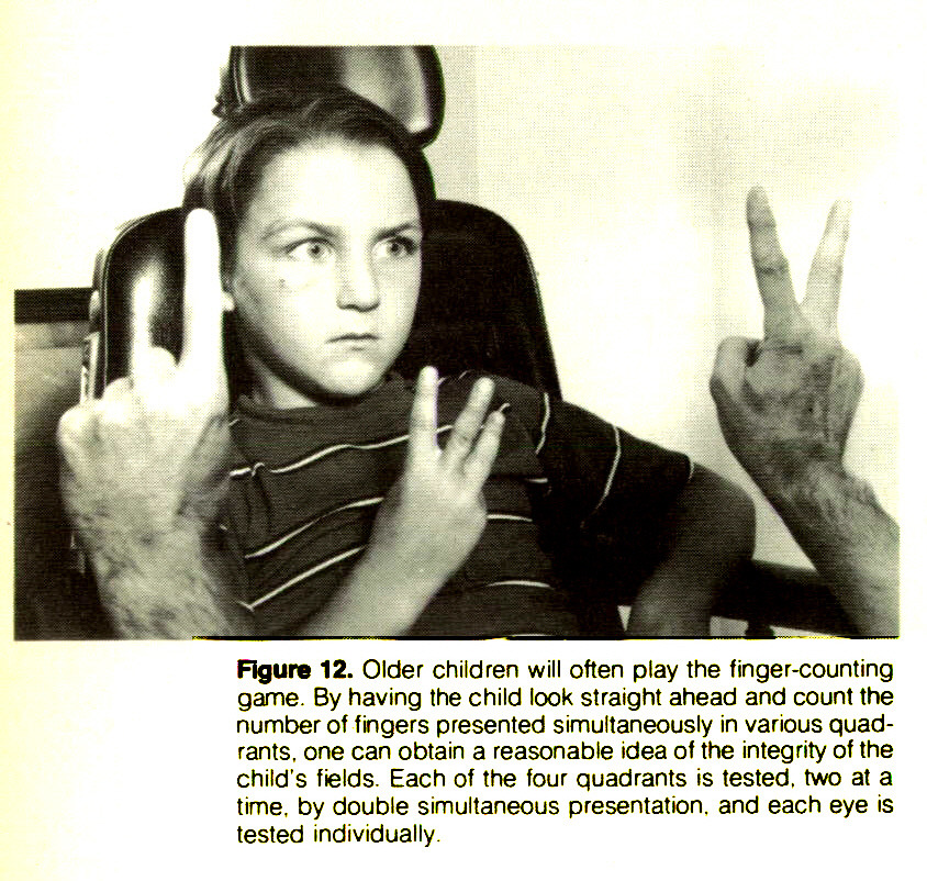 Figure 12. Older children will often play the finger-counting game. By having the child look straight ahead and count the number of fingers presented simultaneously in various quadrants, one can obtain a reasonable idea of the integrity of the child's fields. Each of the four quadrants is tested, two at a time, by double simultaneous presentation, and each eye is tested individually.