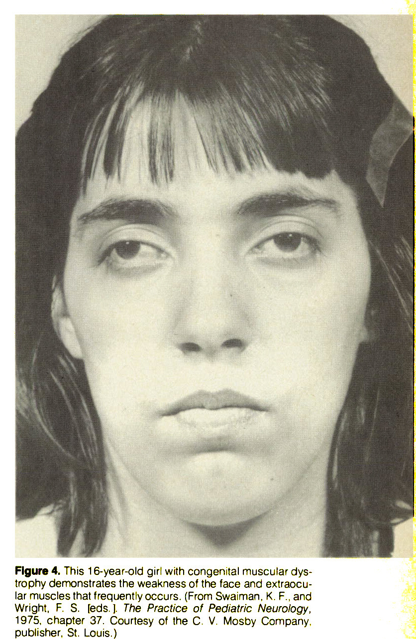 Figure 4. This 16-year-old girl with congenital muscular dystrophy demonstrates the weakness of the face and extraocular muscles that frequently occurs. (From Swaiman. K, F., and Wright, F. S. [eds. ]. The Practice of Pediatric Neurology, 1975, chapter 37. Courtesy of the C. V. Mosby Company, publisher, St. Louis.)