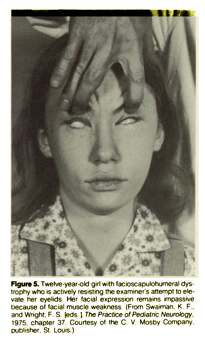 Figure 5. Twelve -year-oid girl with facioscapulohumeral dystrophy who is actively resisting the examiner's attempt to elevate her eyelids. Her facial expression remains impassive because of facial muscle weakness (From Swaiman. K. F.. and Wright. F. S. [eds. J. The Practice of Pediatric Neurology, 1975. chapter 37. Courtesy of the C. V. Mosby Company, publisher. St. Louis.)