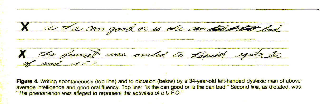 "Figure 4. Writing spontaneously (top line) and to dictation (below) by a 34-year-old left-handed dyslexic man of aboveaverage intelligence and good oral fluency Top line: ""is the can good or is the can bad."" Second line, as dictated, was: ""The phenomenon was alleged to represent the activities of a UFO.''"