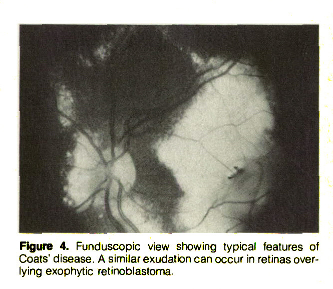 Figure 4. Funduscopic view showing typical features of Coats' disease. A similar exudation can occur in retinas overlying exophytic retinoblastoma.