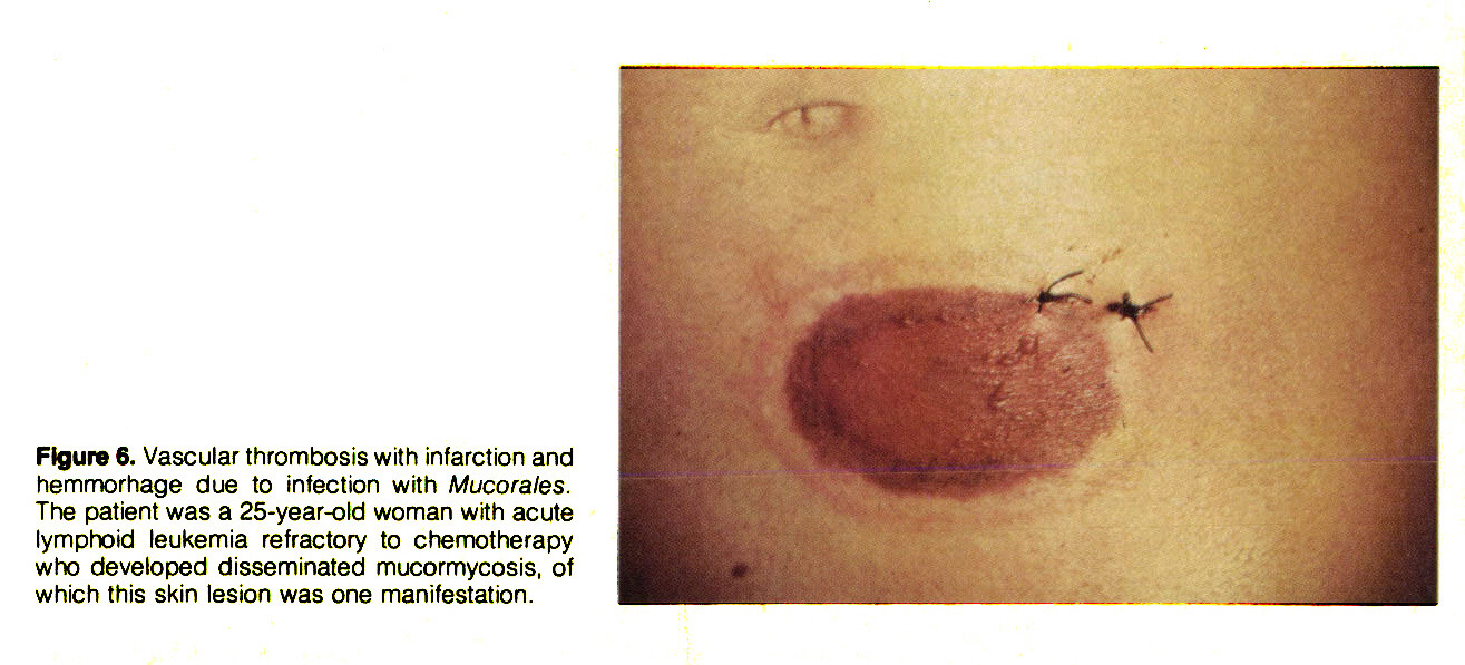 Figure 6. Vascular thrombosis with infarction and hemmorhage due to infection with Mucorales. The patient was a 25-year-old woman with acute lymphoid leukemia refractory to chemotherapy who developed disseminated mucormycosis, of which this skin lesion was one manifestation.