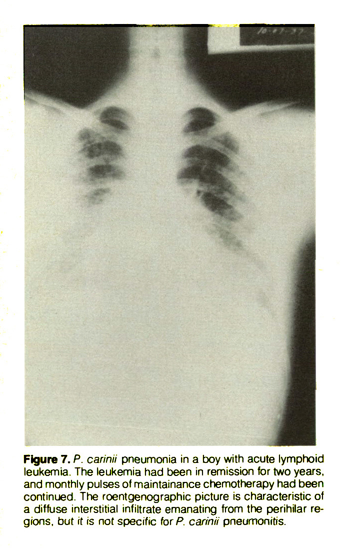 Figure 7. P. carinii pneumonia in a boy with acute lymphoid leukemia. The leukemia had been in remission for two years, and monthly pulses of maintainance chemotherapy had been continued. The roentgenographs picture is characteristic of a diffuse interstitial infiltrate emanating from the perihilar regions, but it is not specific for P. carinii pneumonitis.