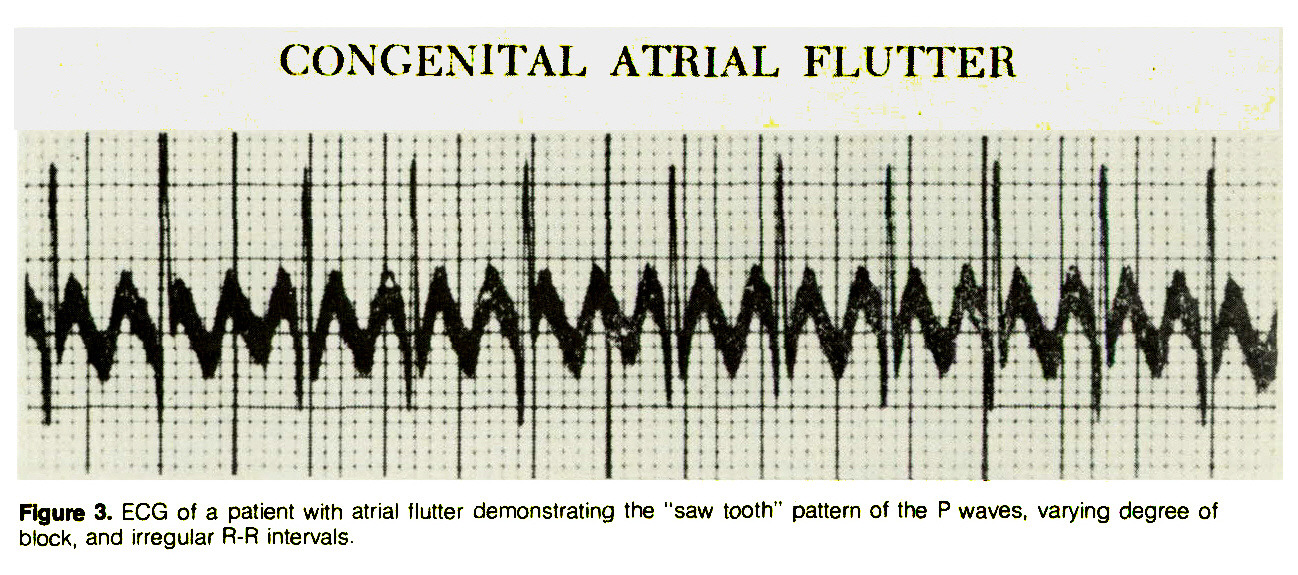 "Figure 3. ECG of a patient with atrial flutter demonstrating the ""saw tooth"" pattern of the P waves, varying degree of block, and irregular R-R intervals."