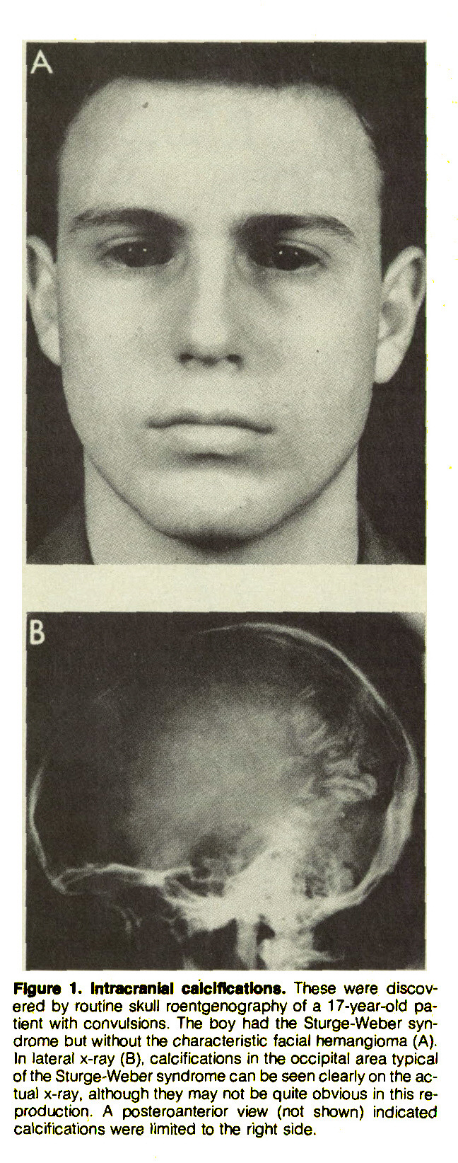 Figure 1. Intracranial calcifications. These were discovered by routine skull roentgenography of a 17-year-old patient with convulsions. The boy had the Sturge-Weber syndrome but without the characteristic facial hemangioma (A). In lateral x-ray (B), calcifications in the occipital area typical of the Sturge-Weber syndrome can be seen clearly on the actual x-ray, although they may not be quite obvious in this reproduction. A poste roanterior view (not shown) indicated calcifications were limited to the right side.