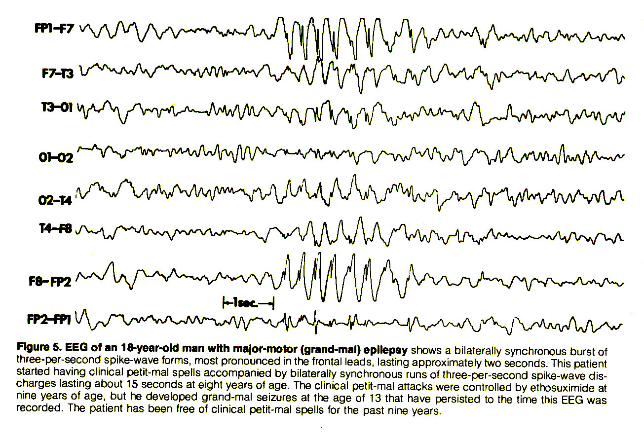 Figure 5. EEG of an 18-year-old man with major-motor (grand-mal) epilepsy shows a bilaterally synchronous burst of three-per-second spike-wave forms, most pronounced in the frontal leads, lasting approximately two seconds. This patient started having clinical petit-mal spells accompanied by bilaterally synchronous runs of three-per-second spike-wave discharges lasting about 15 seconds at eight years of age. The clinical petit-mal attacks were controlled by ethosuximide at nine years of age, but he developed grand-mal seizures at the age of 13 that have persisted to the time this EEG was recorded. The patient has been free of clinical petit-mal spells for the past nine years.