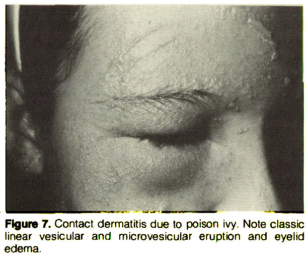 Figure 7. Contact dermatitis due to poison ivy. Note classic linear vesicular and mie roves icular eruption and eyelid edema.