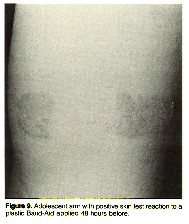 Figure 9. Adolescent arm with positive skin test reaction to a plastic Band-Aid applied 48 hours before.