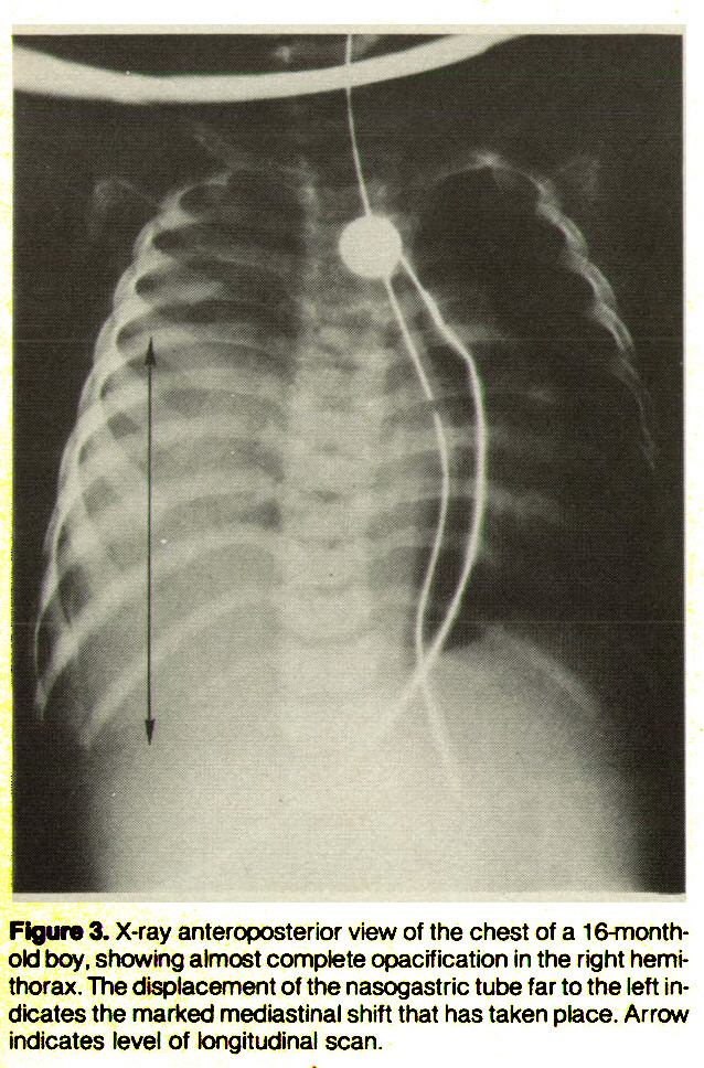 Figure 3. X-ray anteroposterior view of the chest of a 16-monthold boy, showing almost complete opacification in the right hemithorax. The displacement of the nasogastric tube far to the left indicates the marked mediastinal shift that has taken place. Arrow indicates level of longitudinal scan.