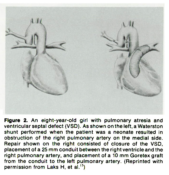Figure 2. An eight-year-old girl with pulmonary atresia and ventricular septal defect (VSD). As shown on the left, a Waterston shunt performed when the patient was a neonate resulted in obstruction of the right pulmonary artery on the medial side. Repair shown on the right consisted of closure of the VSD, placement of a 25 mm conduit between the right ventricle and the right pulmonary artery, and placement of a 10 mm Goretex graft from the conduit to the left pulmonary artery. (Reprinted with permission from Laks H, et al.'5)