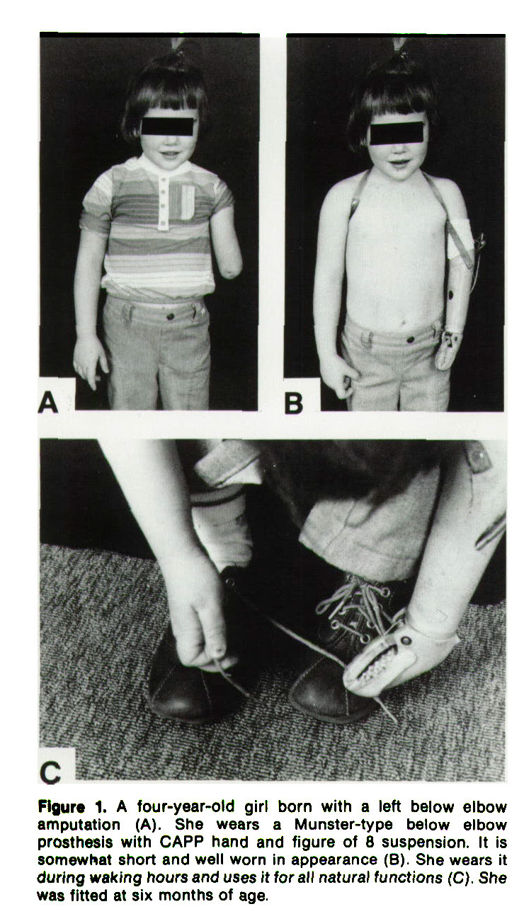 Figure 1. A four-year-old girl born with a left below elbow amputation (A). She wears a Munster-type below elbow prosthesis with CAPP hand and figure of 8 suspension. It is somewhat short and well worn in appearance (B). She wears it during waking hours and uses it lor all naturai functions (C). She was fitted at six months of age.