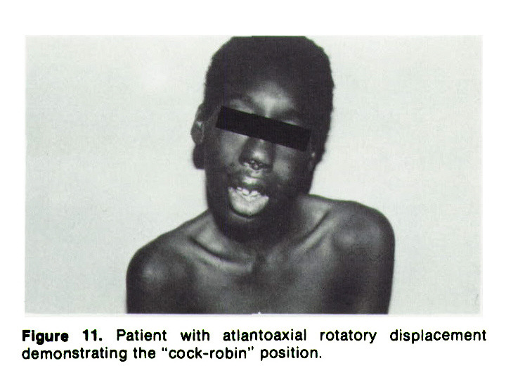"""Figure 11. Patient with atlantoaxial rotatory displacement demonstrating the """"cock-robin"""" position."""