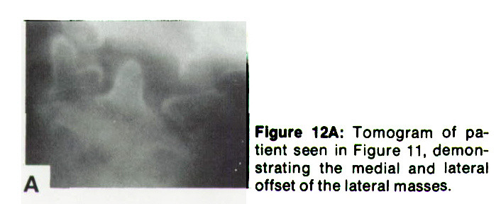 Figure 12A: Tomogram of patient seen in Figure 11, demonstrating the medial and lateral offset of the lateral masses.