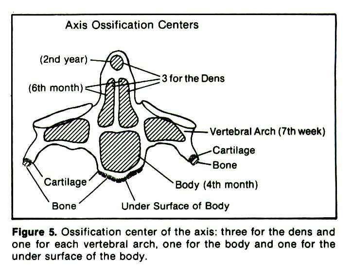 Figure 5. Ossification center of the axis: three for the dens and one for each vertebral arch, one for the body and one for the under surface of the body.