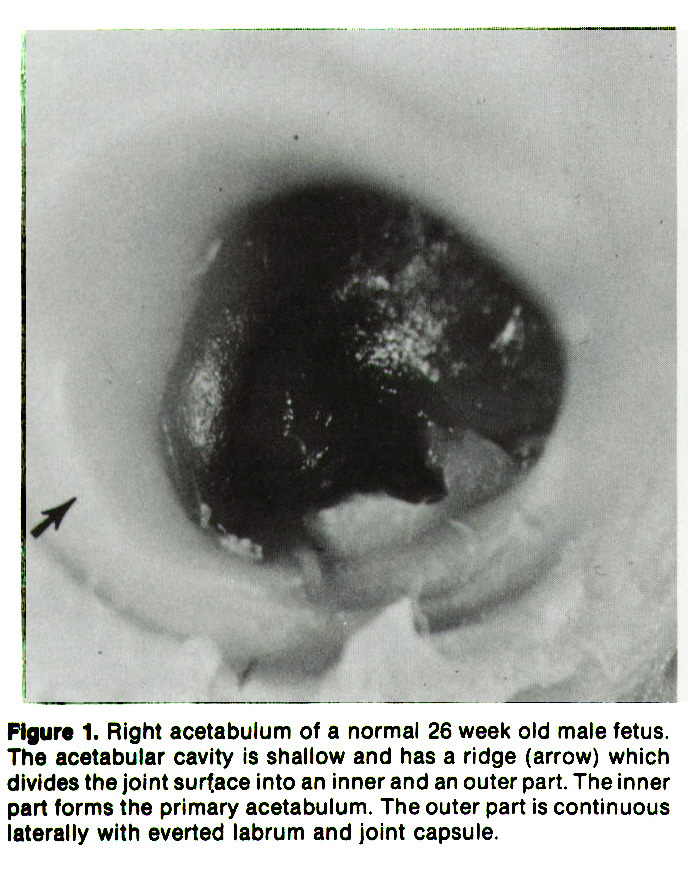 Figure 1. Right acetabulum of a normal 26 week old male fetus. The acetabular cavity is shallow and has a ridge (arrow) which divides the joint surface into an inner and an outer part. The inner part forms the primary acetabulum. The outer part is continuous laterally with everted labrum and joint capsule.