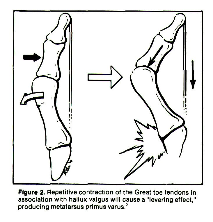 """Figure 2. Repetitive contraction of the Great toe tendons in association with hallux valgus will cause a """"levering effect,"""" producing metatarsus primus varus.'"""