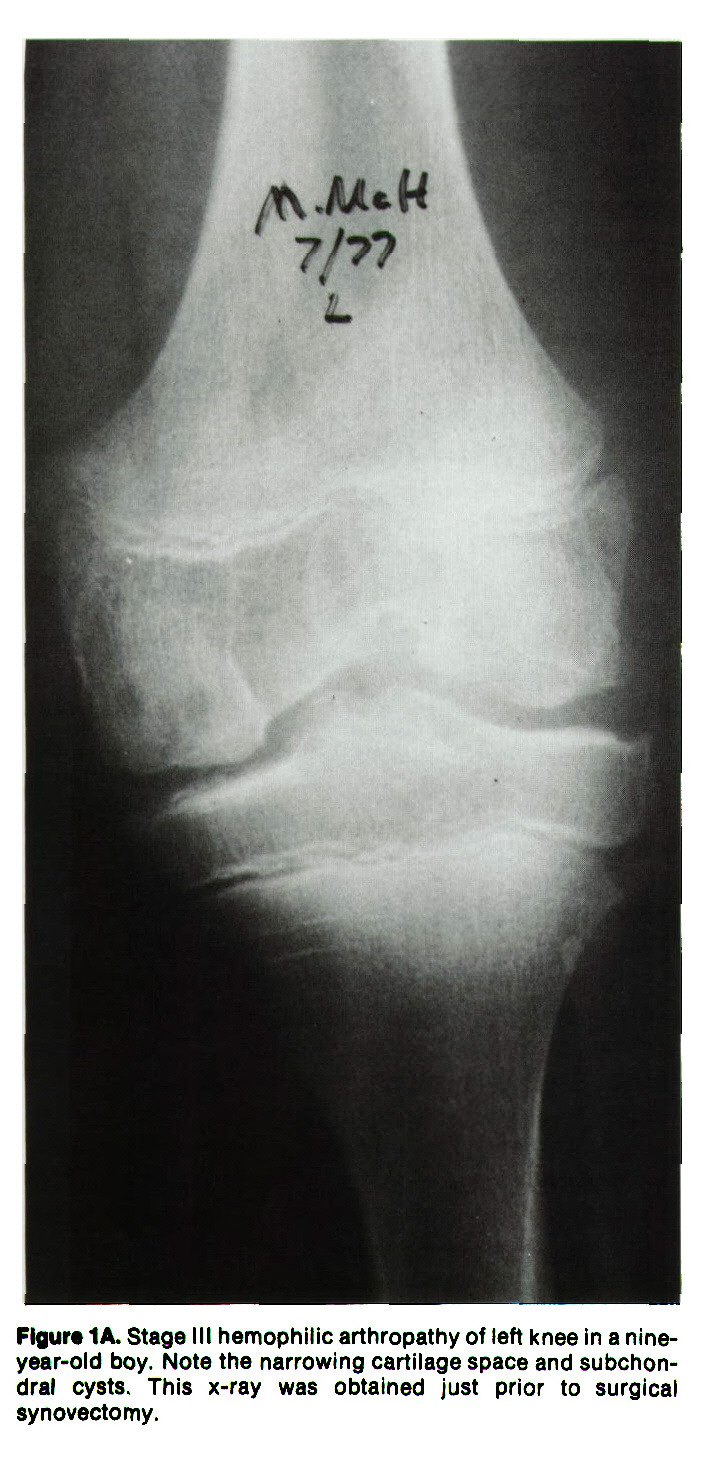Figur· 1A. Stage III hemophilic arthropathy of left knee in a nineyear-old boy. Note the narrowing cartilage space and subchondral cysts. This x-ray was obtained just prior to surgical synovectomy.