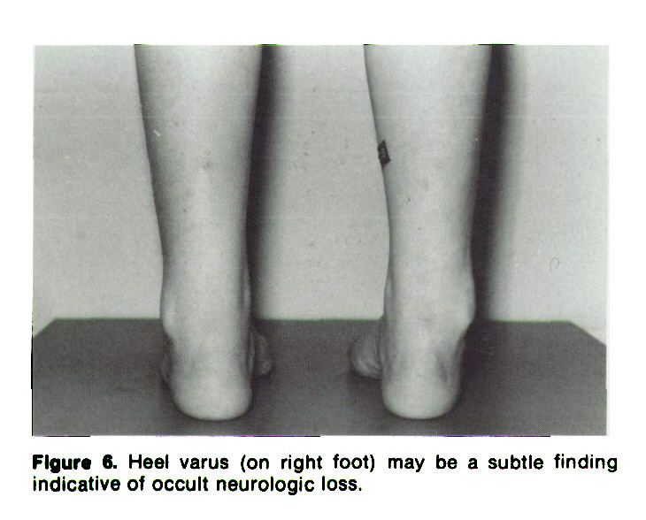 Figure 6. Heel varus (on right foot) may be a subtle finding indicative of occult neurologic loss.
