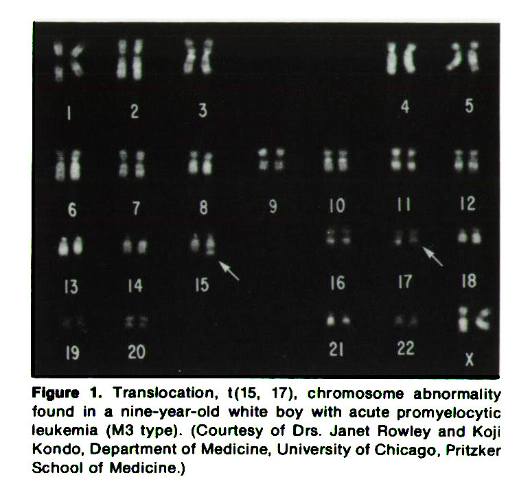 Figure 1. Translocation, t(15, 17), chromosome abnormality found in a nine-year-old white boy with acute promyelocytic leukemia (M3 type). (Courtesy of Drs. Janet Rowley and Koji Kondo, Department of Medicine, University of Chicago, Pritzker School of Medicine.)
