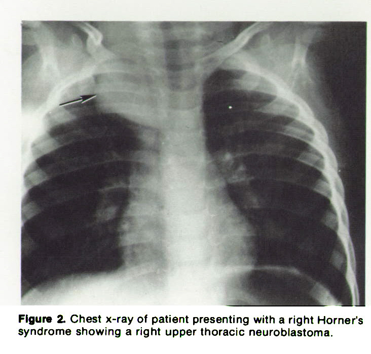 Figure 2. Chest x-ray of patient presenting with a right Horner's syndrome showing a right upper thoracic neuroblastoma.