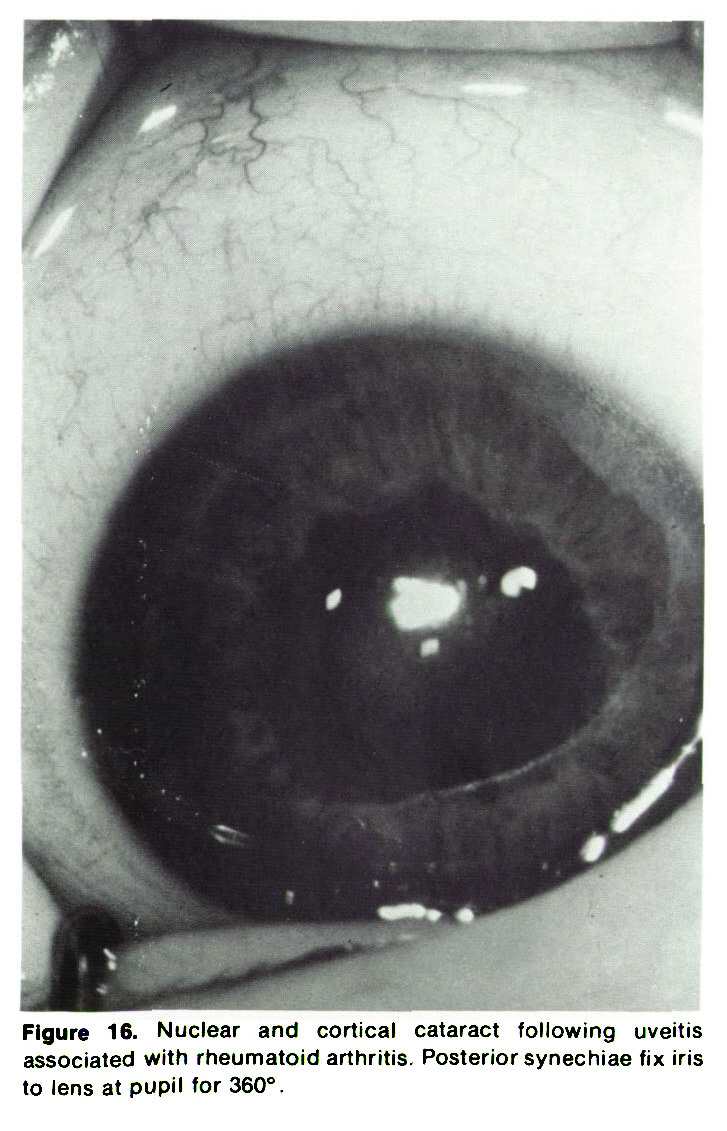 Figure 16. Nuclear and cortical cataract following uveitis associated with rheumatoid arthritis. Posterior synechiae fix iris to lens at pupil for 360°.
