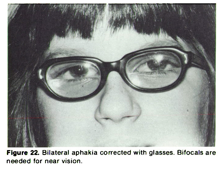 Figure 22. Bilateral aphakia corrected with glasses. Bifocals are needed for near vision.