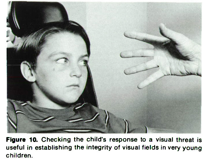 Figure 10. Checking the child's response to a visual threat is useful in establishing the integrity of visual fields in very young children.