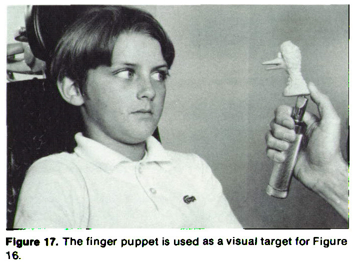 Figure 17. The finger puppet is used as a visual target for Figure 16.