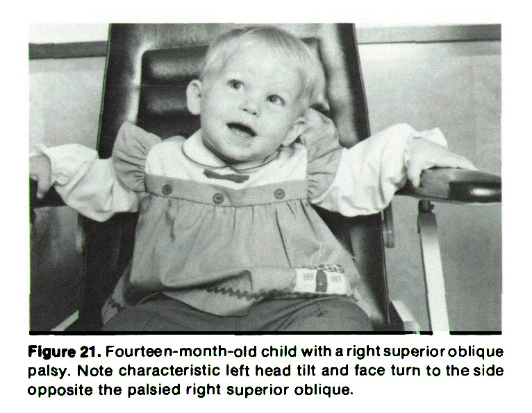 Figure 21. Fourteen-month-old child with a right superior oblique palsy. Note characteristic left head tilt and face turn to the side opposite the palsied right superior oblique.