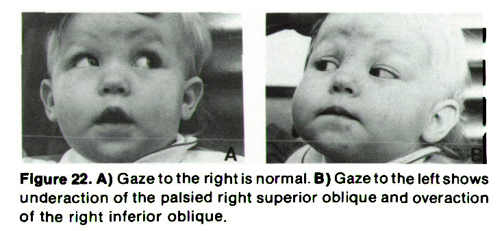 Figure 22. A) Gaze to the right is normal. B) Gaze to the left shows underaction of the palsied right superior oblique and overaction of the right inferior oblique.