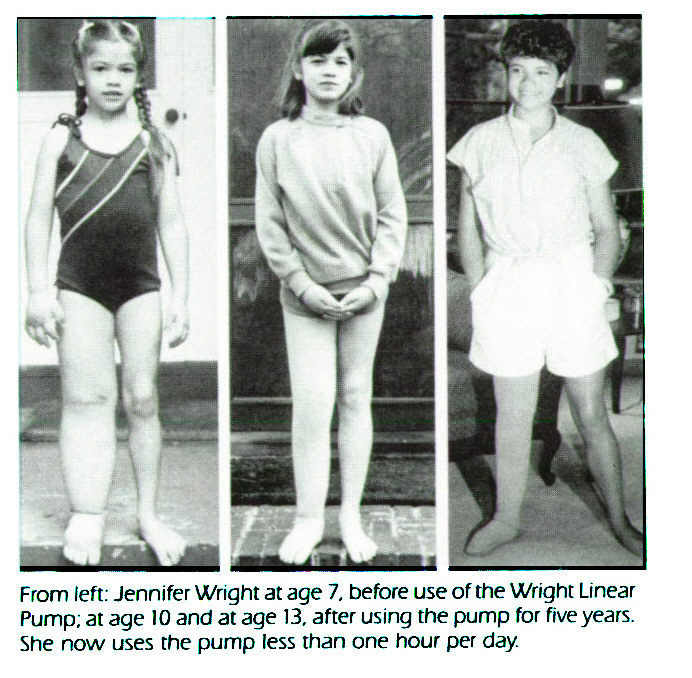 From /eft: Jennifer Wright at age 7, before use offne Wright Linear Pump; at age 10 and at age 13, after using the pump for five years. She now uses the pump less than one hour per day