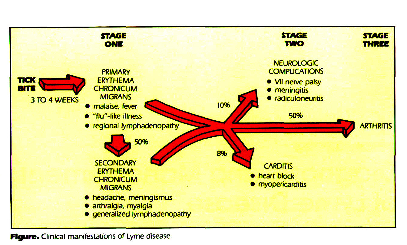 Figure. Clinical manifestations of Lyme disease.