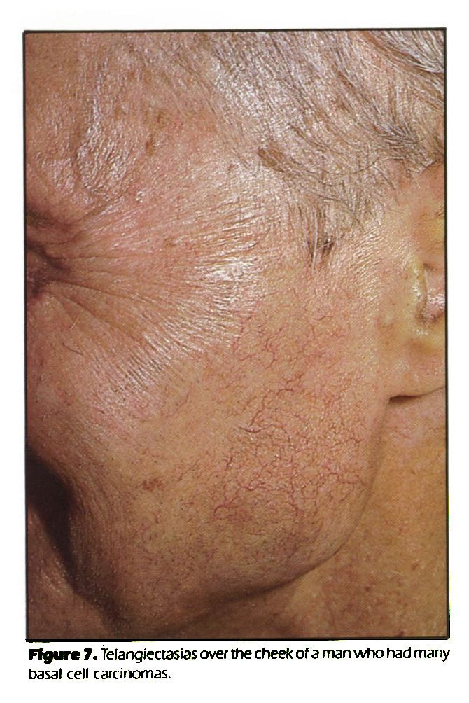 Figure 7. Telangiectasias over the cheek of a man who had many basal cell carcinomas.