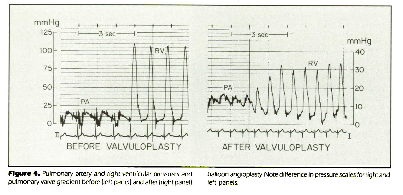 Figure 4. Pulmonary artery and fight ventricular pressures and pulmonary valve grathent before (left panel) and after (right panel) balloon angioplasty. Note difference in pressure scales for right and left panels.