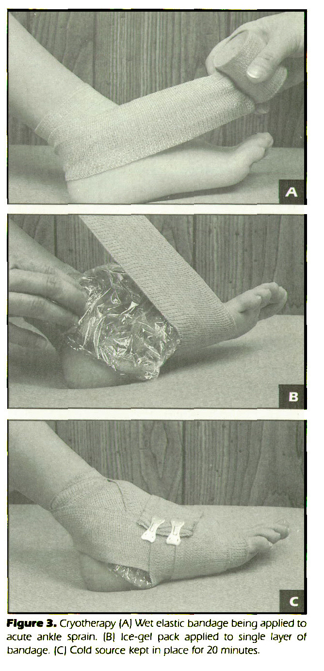 Figure 3. Cryotherapy (AJ Wet elastic bandage being applied to acute ankle sprain. (B) Ice-gel pack applied to single layer of bandage. |C| Cold source kept in place for 20 minutes.