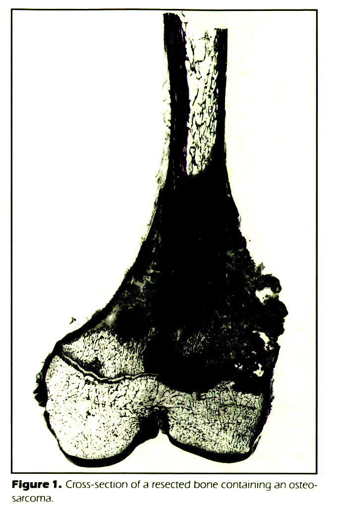 Figure 1. Cross-section of a resected bone containing an osteosarcoma.