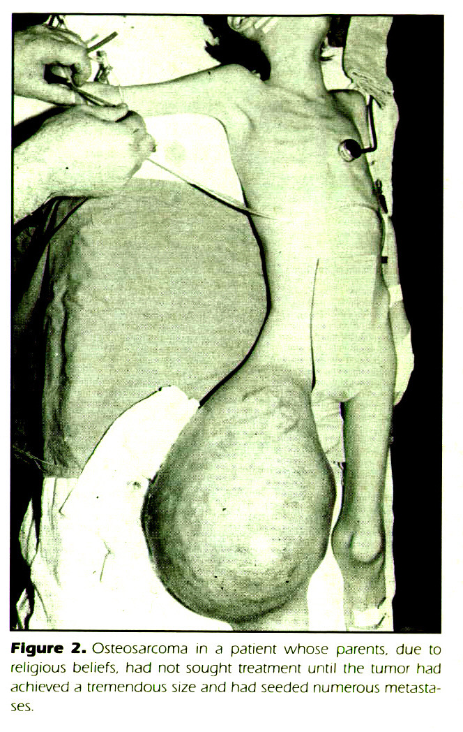 Figure 2. Osteosarcoma m a patient whose parents, due to religious beliefs, had not sought treatment until the tumor had achieved a tremendous size and had seeded numerous metastases.