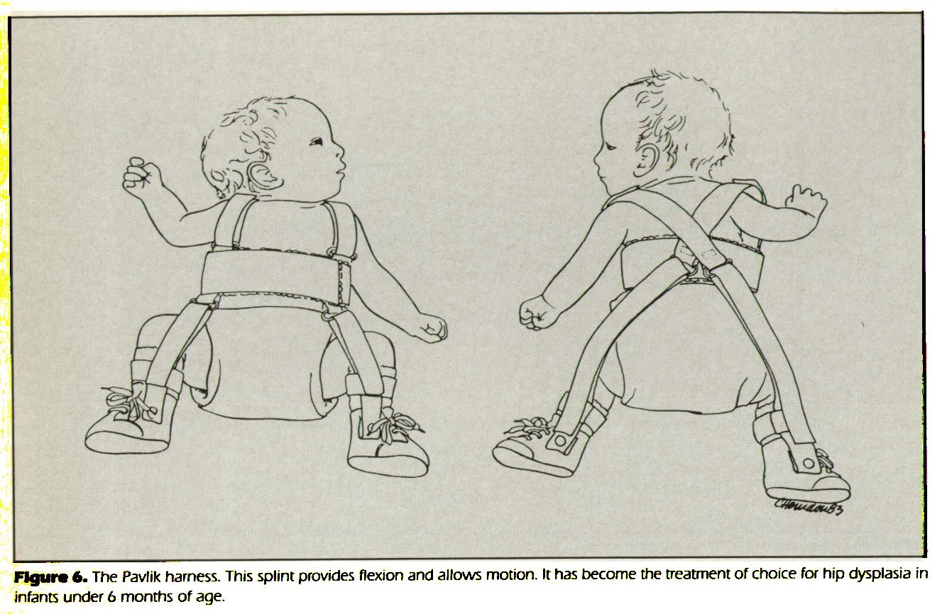 Figure 6. The Pavlik harness. This splint provides flexion and allows motion. It has become the treatment of choice for hip dysplasia in infants under 6 months of age.
