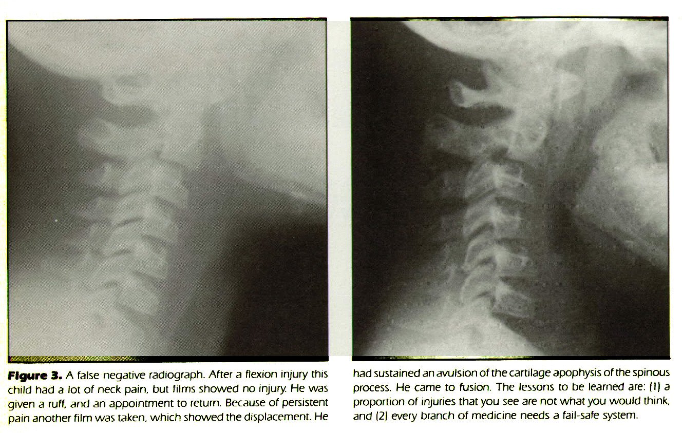 Figure 3. A false negative radiograph. After a flexion injury this child had a lot of neck pain, but films showed no injury. He was given a ruff, and an appointment to return. Because of persistent pain another film was taken, which showed the displacement. He had sustained an avulsion of the cartilage apophysis of the spinous process. He came to fusion. The lessons to be learned are:  1) a proportion of injuries that you see are not what you would think, and  2) every branch of medicine needs a fail-safe system.