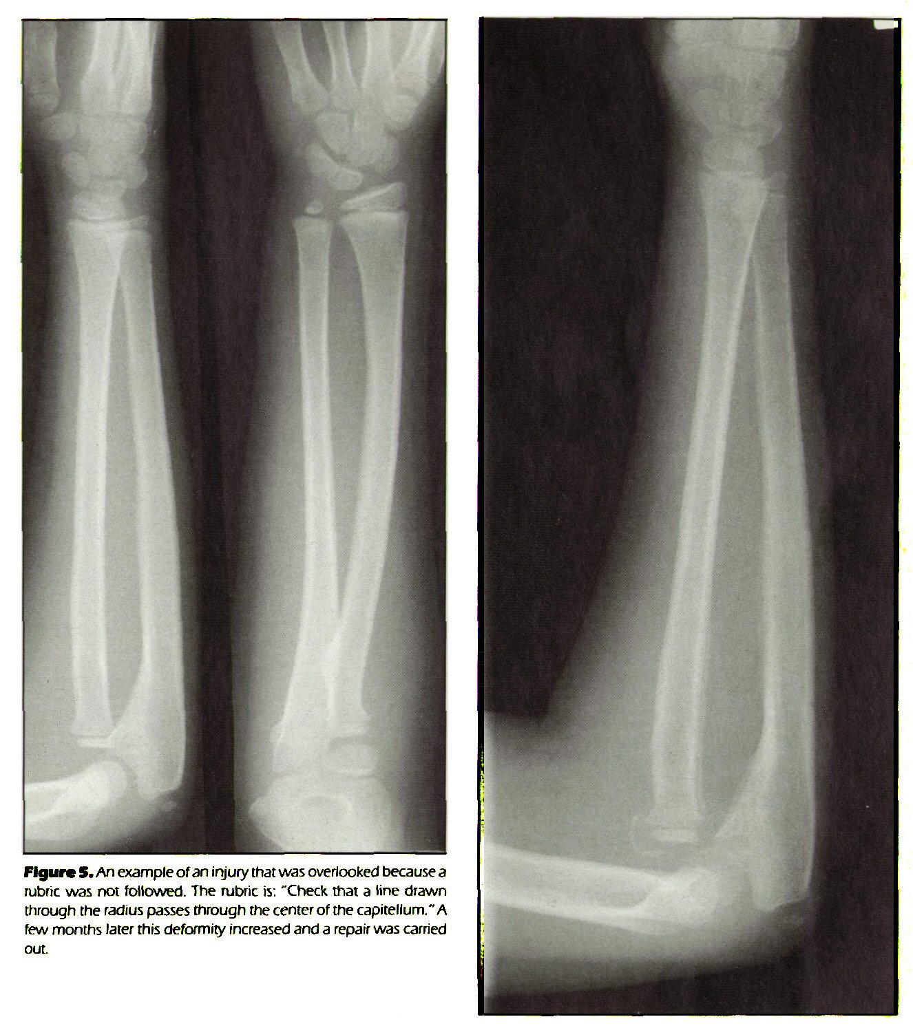 """Figure 5. An example of an injury that was overlooked because a rubric was not followed. The rubric is: """"Check that a tine drawn through the radius passes through the center of the capitellum.""""A few months later this deformity increased and a repair was carried out."""