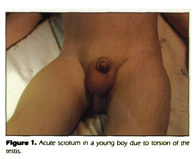 Figure 1. Acute scrotum in a young boy due to torsion of the testis.