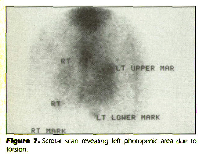 Figure 7. Scrotal scan revealing left photopenic area due to torsion.