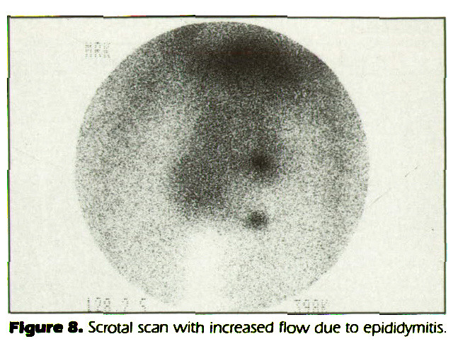 Figure 8. Scrotal scan with increased flow due to epididymitis.