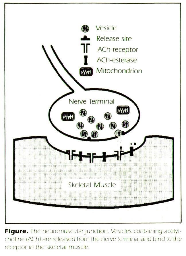 Figure. The neuromuicular junction. Vesicles containing acetylcholine (ACh) dre released from the nerve terminal and bind to the receptor in the skeletal muscle