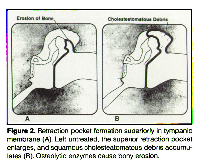 Figure 2. Retraction pocket formation superiorly in tympanic membrane (A). Left untreated, the superior retraction pocket enlarges, and squamous cholesteatomatous debris accumulates (B). Osteolytic enzymes cause bony erosion.