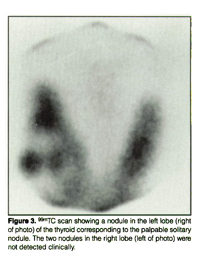 """Figure 3. """"""""1TC scan showing a nodule in the left lobe (right of photo) of the thyroid corresponding to the palpable solitary nodule. The two nodules in the right lobe (left of photo) were not detected clinically."""