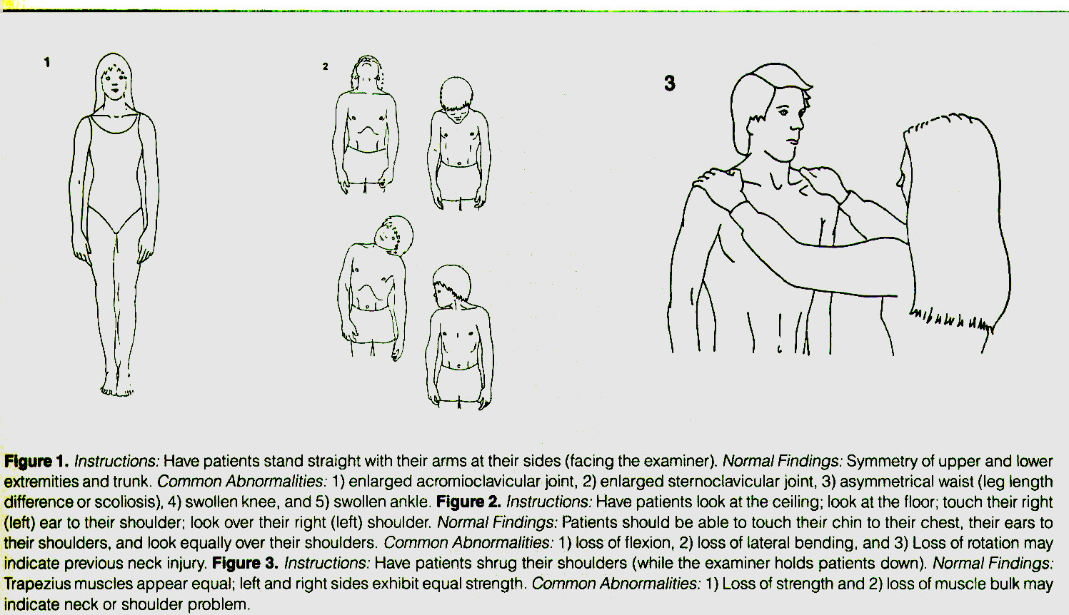 Figure 1. Instructions: Have patients stand straight with their arms at their sides (facing the examiner). Normal Findings: Symmetry of upper and lower extremities and trunk. Common Abnormalities: 1) enlarged acromioclavicular joint, 2) enlarged sternoclavicular joint, 3) asymmetrical waist (leg length difference or scoliosis), 4) swollen knee, and 5) swollen ankle. Figure 2. Instructions: Have patients look at the ceiling; look at the floor; touch their right (left) ear to their shoulder; look over their right (left) shoulder. Normal Findings: Patients should be able to touch their chin to their chest, their ears to their shoulders, and look equally over their shoulders. Common Abnormalities: 1 ) loss of flexion, Z) loss of lateral bending, and 3) Loss of rotation may indicate previous neck injury. Figure 3. Instructions: Have patients shrug their shoulders (while the examiner holds patients down). Normal Findings: Trapezius muscles appear equal; left and right sides exhibit equal strength. Common Abnormalities: 1) Loss of strength and 2) loss of muscle bulk may indicate neck or shoulder problem.